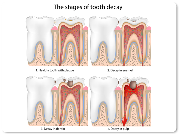 Stages_of_Tooth_Decay-300x2951