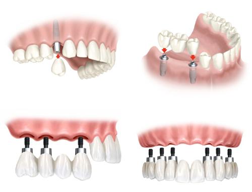 cay-ghep-implant-la-gi