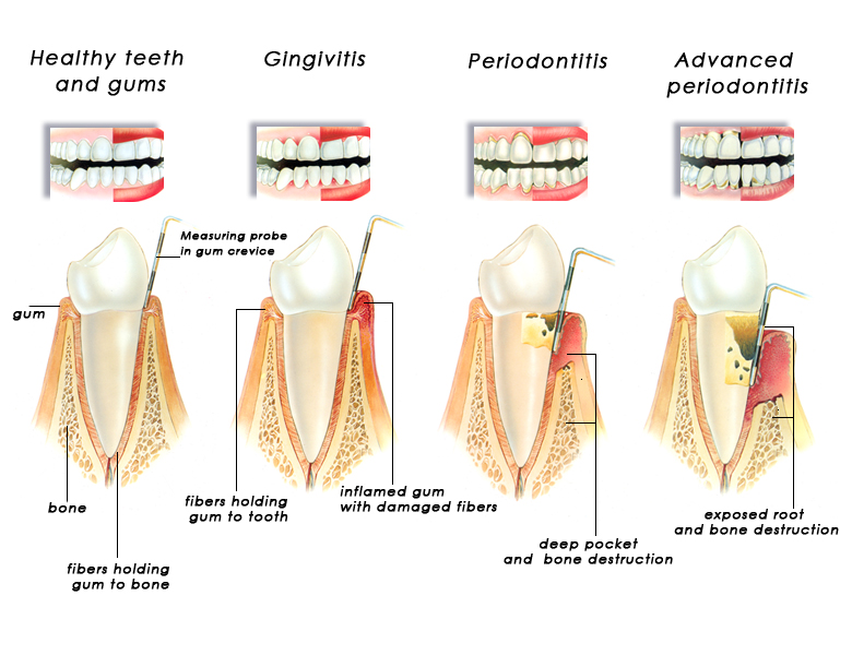 gingivitis_periodontitis