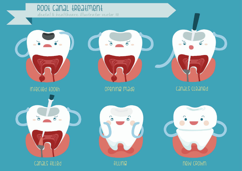 root-canal-therapy-smyrna-tn-legacy-hill-dentistry