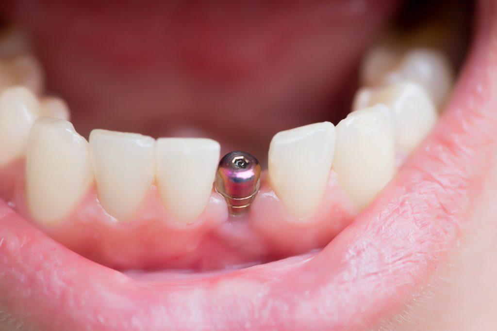 Những Điều Cần Lưu Ý Sau Khi Cấy Ghép Implant