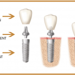 Implant Nha Khoa Tồn Tại Bao Lâu?