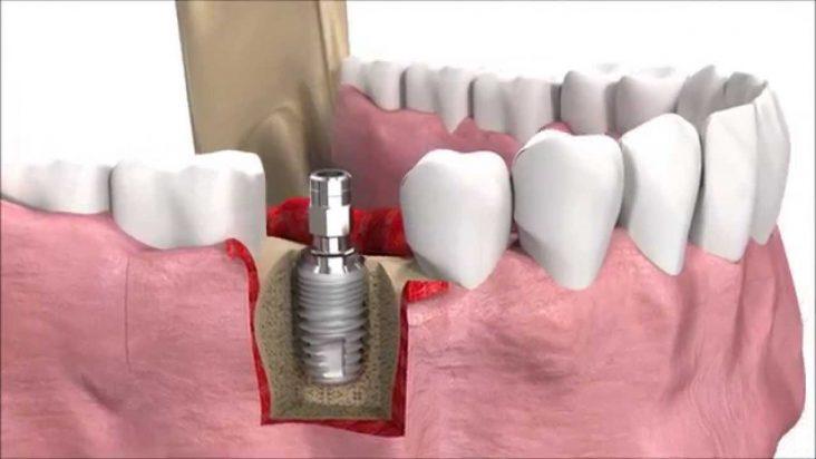 Nong Xương, Ghép Xương, Nâng Xoang Trong Cấy Implant Là Gì?