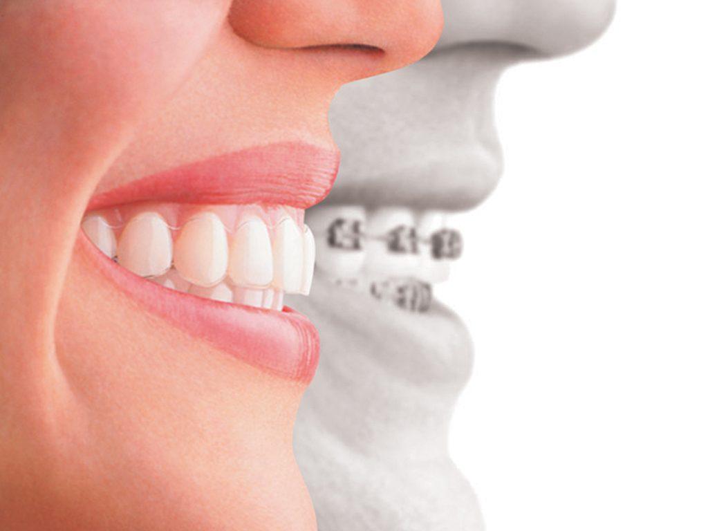 Niềng Răng Ở Quận 1