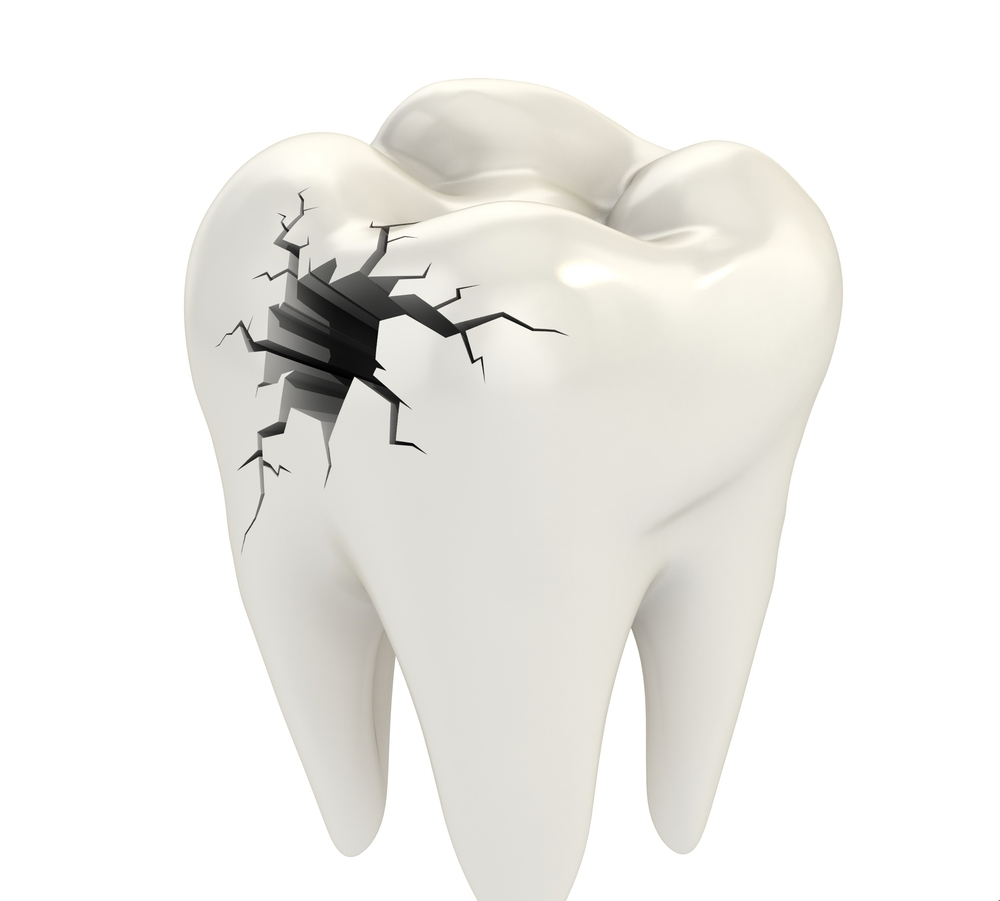 Quá Trình Hình Thành Sâu Răng – Nha Khoa Xinh Xinh